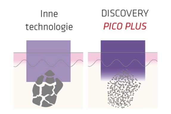 Laser Pikosekundowy