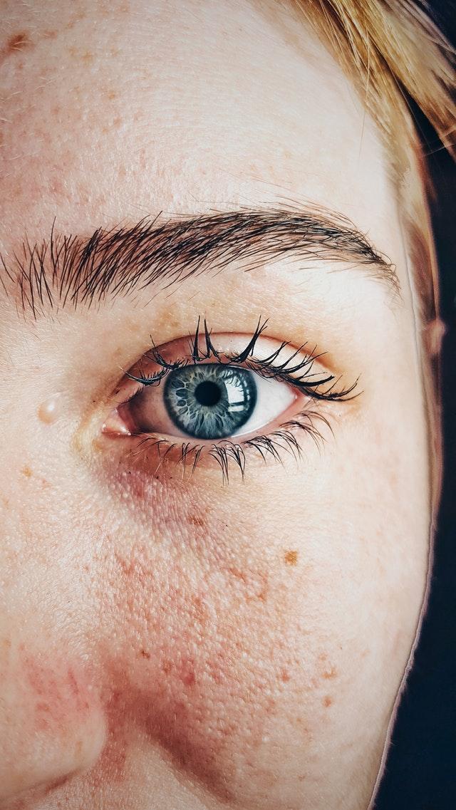 Atopowe zapalenie skóry, dzięki odpowiednim sposobom leczenia może być złagodzone