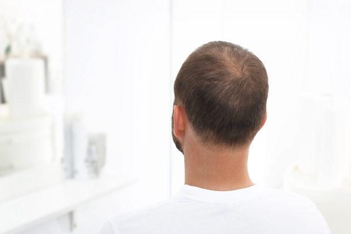 Łysienie androgenowe to choroba, która powoduje duży dyskomfort i przyczynia się do obniżenia poczucia własnej wartości